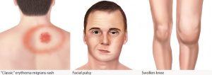 lyme symptoms (CDC)